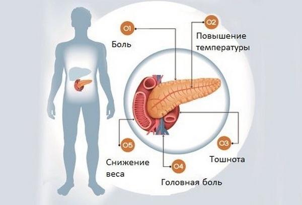 Воспалительный процесс в поджелудочной железе вызывает температуру, боли, тошноту, потерю в весе