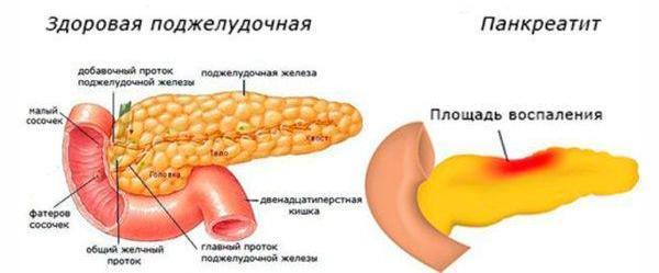 Поджелудочная железа здоровая и при панкреатите