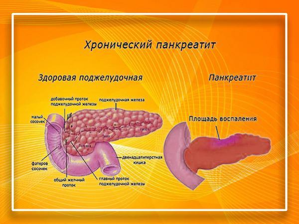 Здоровая поджелудочная железа и при хроническом панкреатите
