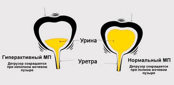 Гиперактивный и нормальный мочевой пузырь у человека