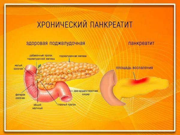 Здоровая поджелудочная железа и панкреатит