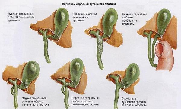 Варианты строения желчного протока