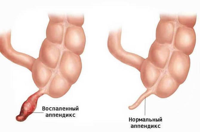 Нормальный и воспаленный аппендиксы