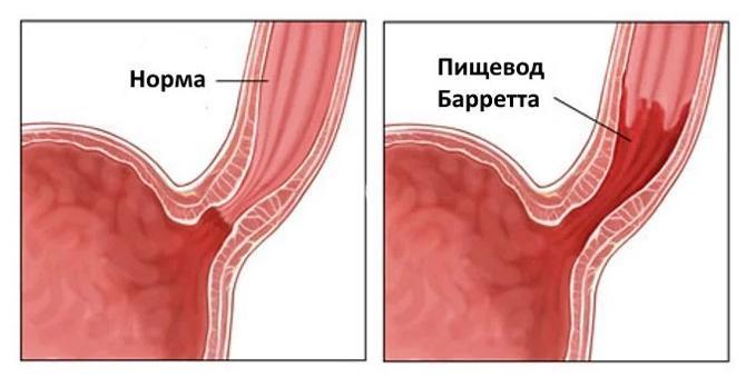 Нормальный пищевод и болезнь Барретта
