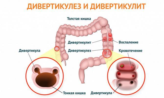 Дивертикулез и дивертикулит кишечника
