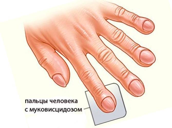 Пальцы с муковисцидозом
