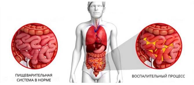 Воспалительный процесс в кишечнике и здоровый кишечник