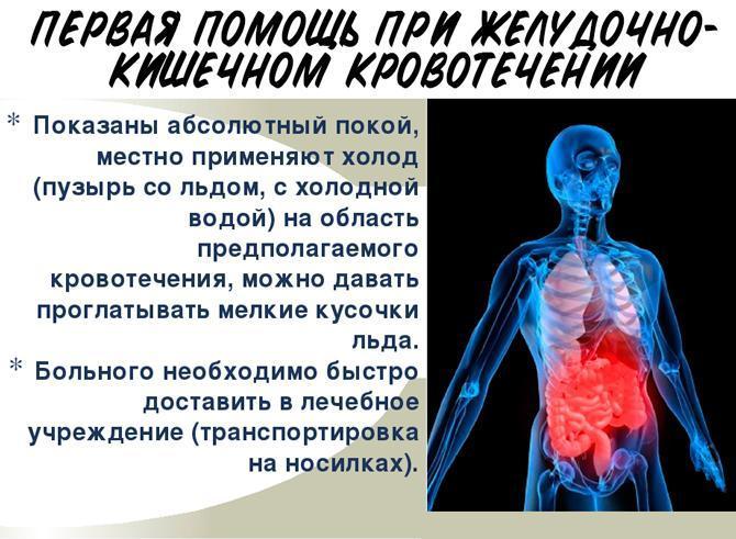 Первая помощь при желудочно-кишечном кровотечении