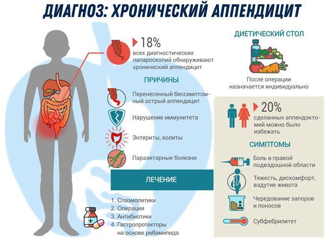 Диагноз аппендицит