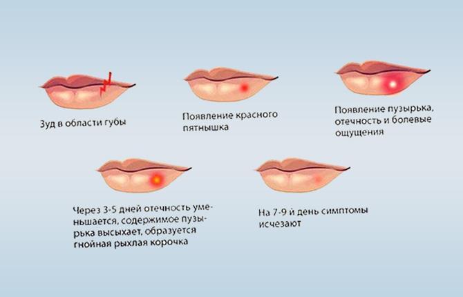 Стадии развития герпеса на губах