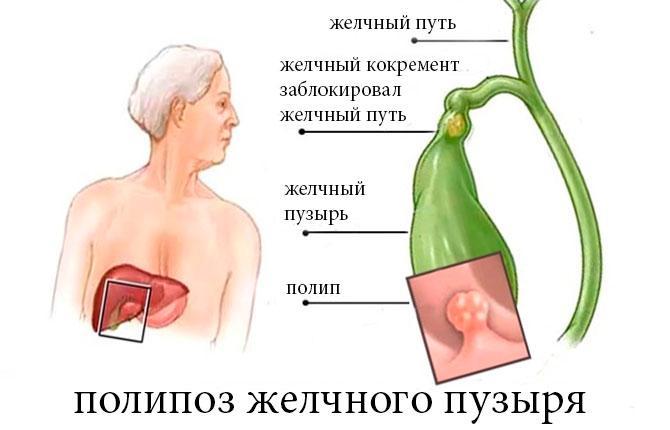 Полипоз желчного