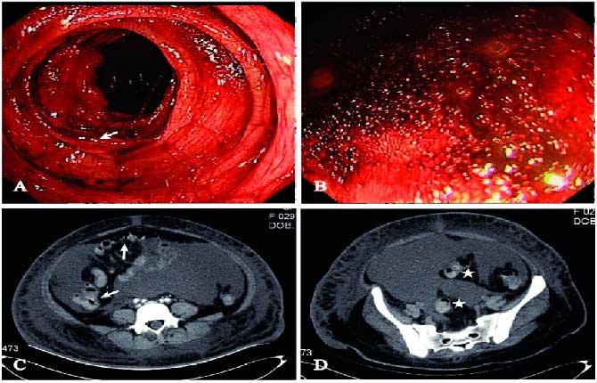 Исследования кишечника