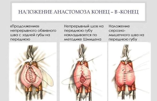Оперативное вмешательство с анастомозом «конец в конец»