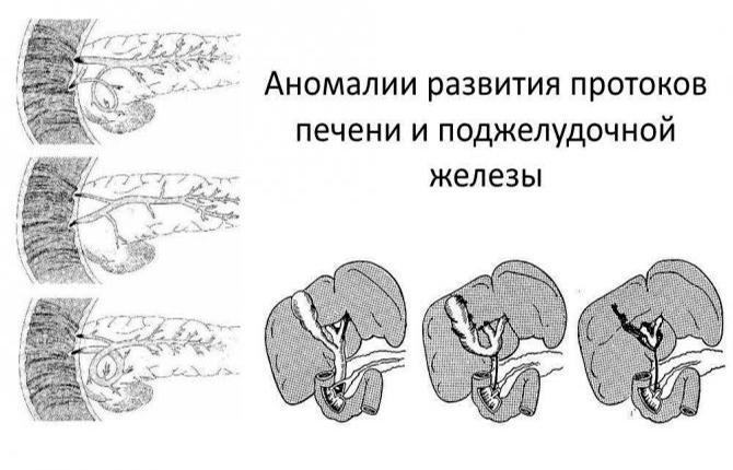 Аномалии развития протоков печени и поджелудочной железы