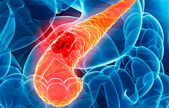 Воспалительный процесс в поджелудочной железе