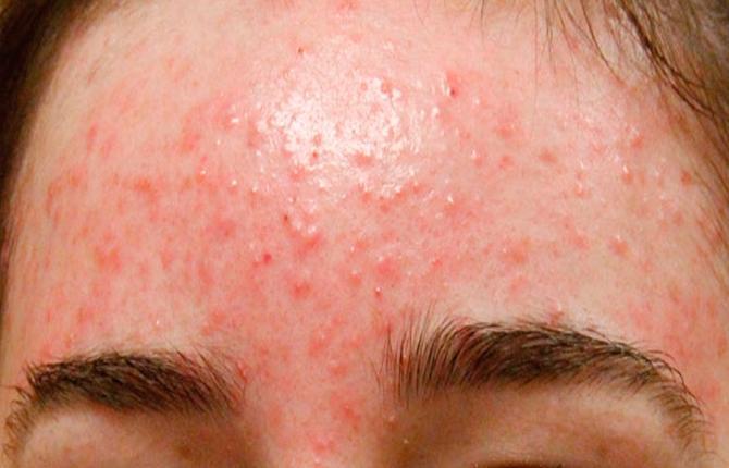 Сыпь на лице при панкреатите