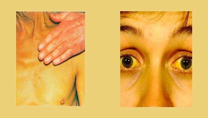 Как правило, процесс изменения оттенка кожи при панкреатите идет постепенно. Сыпь при этом пропадает
