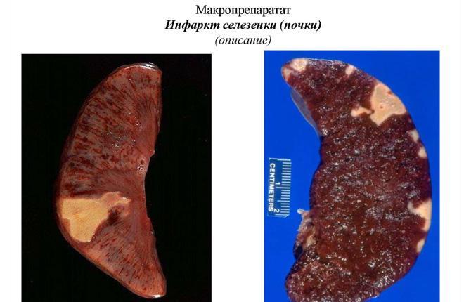 При инфаркте селезенки лишенные кислорода и питательных веществ участки паренхимы отмирают