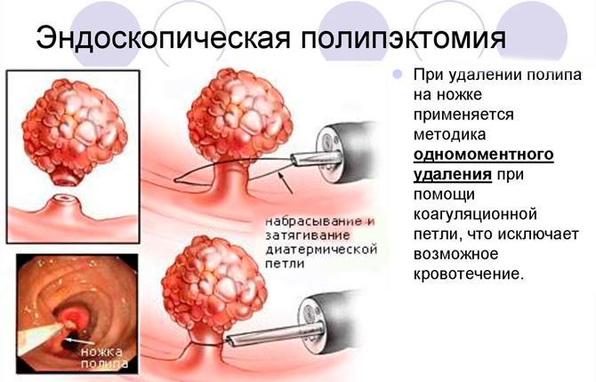 Лечение опухоли тонкой кишки