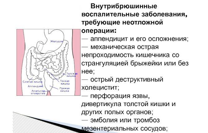 Внутрибрюшинные заболевания